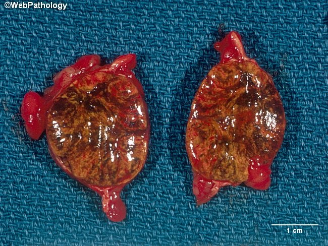 Adrenal_CorticalAdenoma2_Cropped.jpg