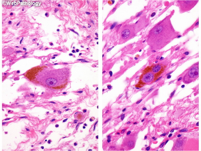 Adrenal_Ganglioneuroma_PigmentComposite_Resized.jpg