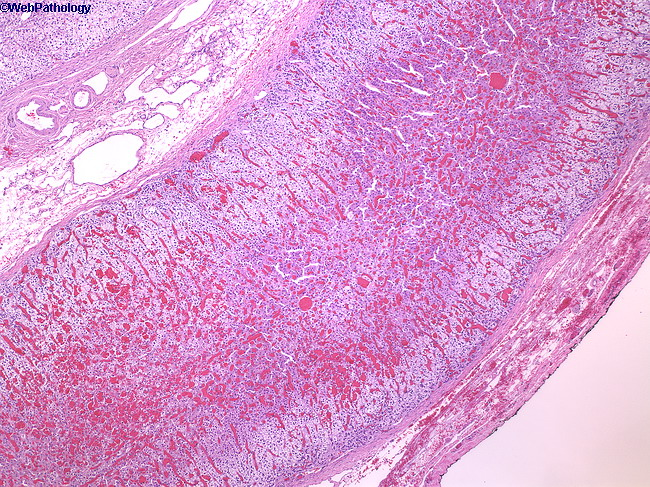 Adrenal_Histology1.jpg