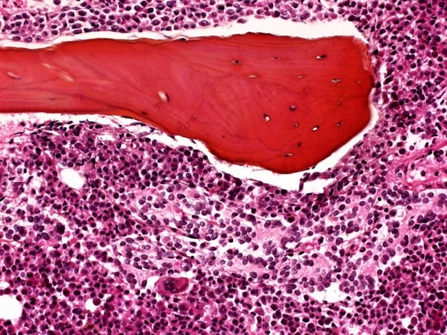 Adrenal_Neuroblastoma_BM.jpg