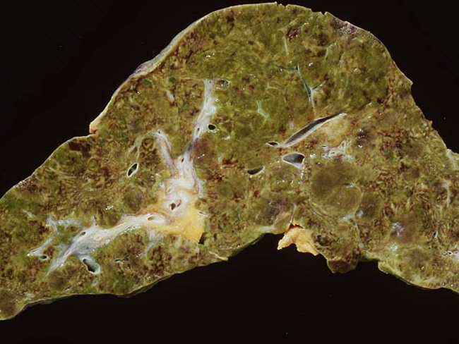 Angiosarcoma_Gross_Liver1_cropped.jpg