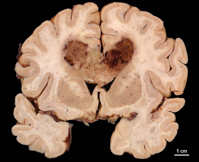 Brain_Astrocytoma_GBM_Gross2_Resized(1).jpg