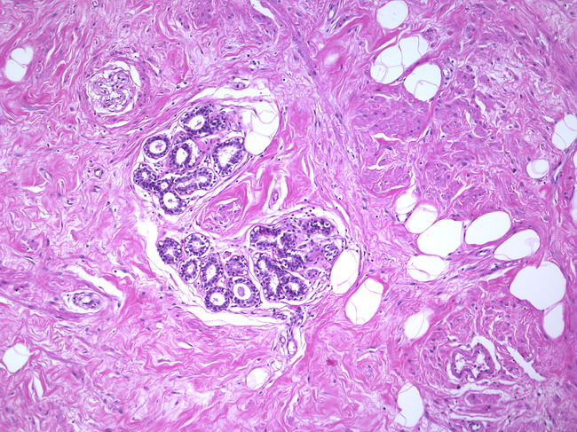 mature mammary tissure from histology images