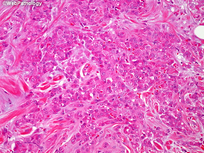 Breast_CA_Apocrine14_Invasive.jpg