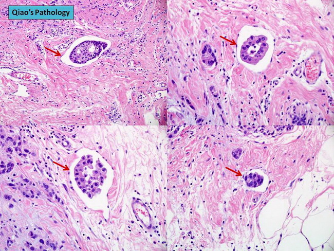 Breast_CA_LymphovascularInvasion1_resized.jpg