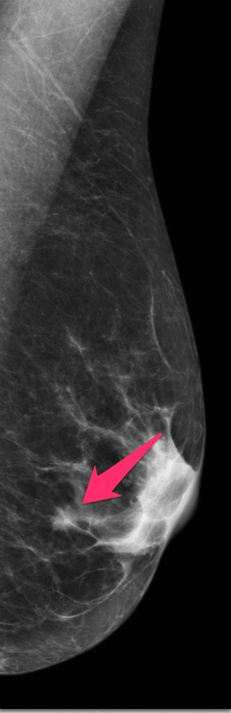 Breast_CA_Tubular10_Mammogram.jpg
