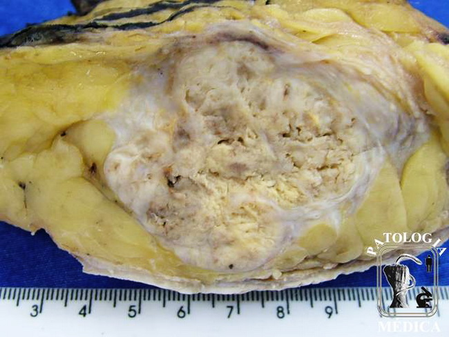 Breast_Carcinoma_Ductal_Infiltrating_Gross15_resized.jpg