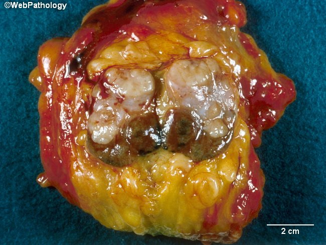 Breast_Carcinoma_Gross9_Apocrine.jpg