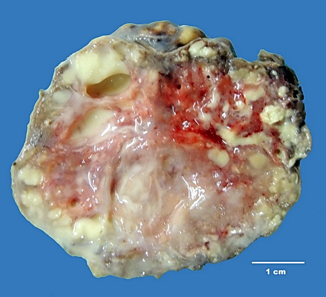 Breast_LactatingAdenoma2_Resized.jpg