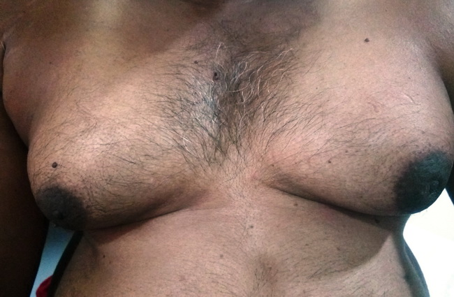 Breast_Male_Gynecomastia_Clinical1_resized.jpg