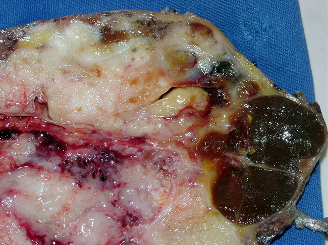 tumor Malignant breast