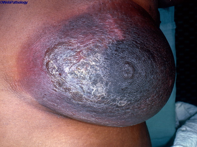 Breast_PlasmaCellMastitis1.jpg