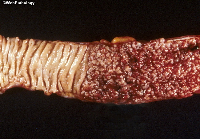 Colon_ChronicUlcerativeColitis9_Pseudopolyps_Cropped.jpg