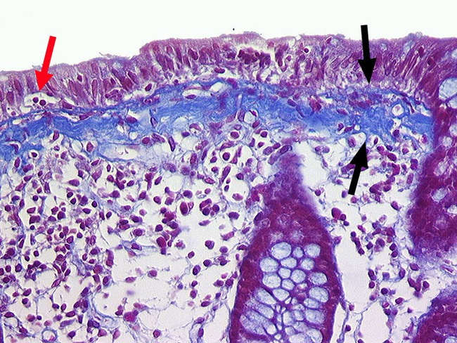 Colon_Colitis_Collagenous_Trichrome_Pathorama3_resized.jpg