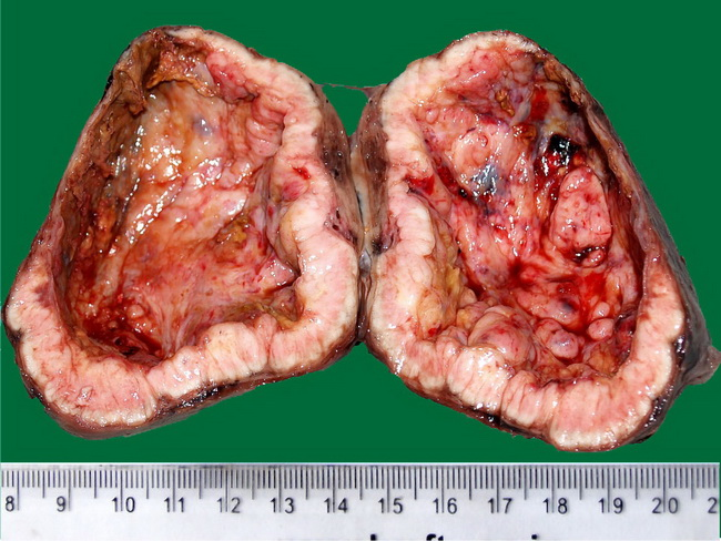 Endocrine_Thyroid_PapillaryCA1_Gross.jpg