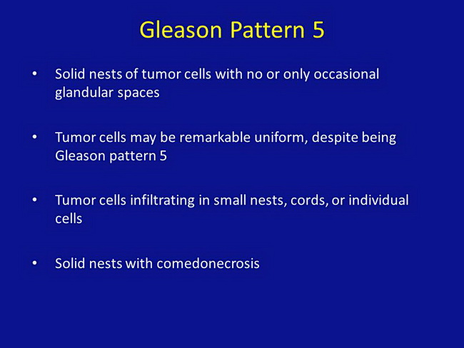 Gleason Pattern 5_Resized.jpg