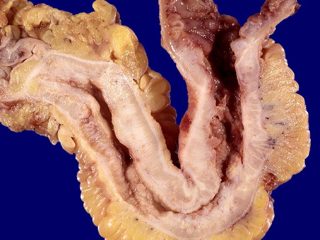 Ileum_CrohnDisease_Gross3_Stenosis_resized.jpg