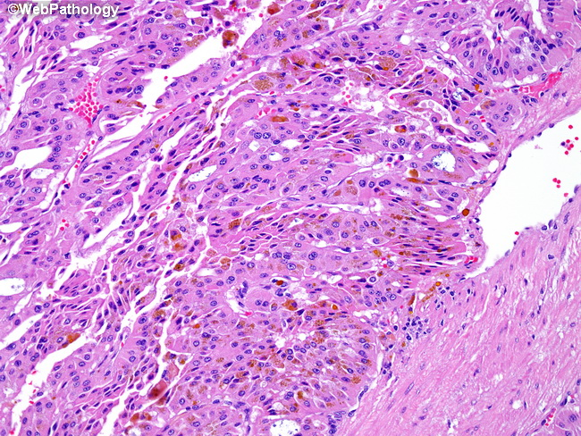 Kidney_Oncocytoma18.jpg