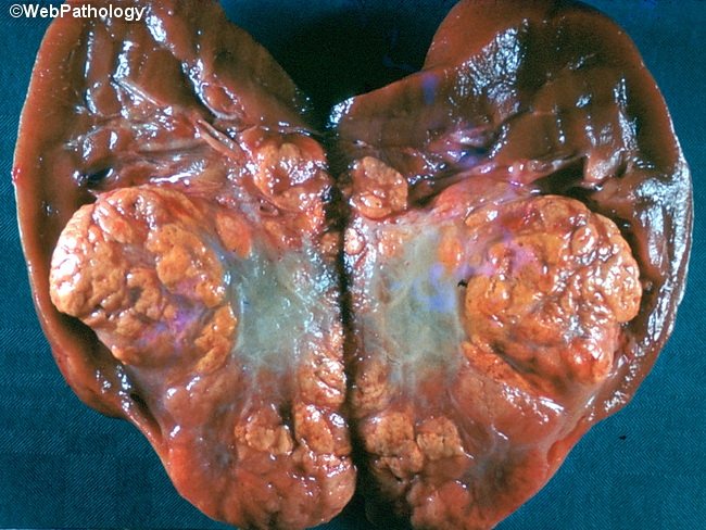 Kidney_RCC_Gross17.jpg