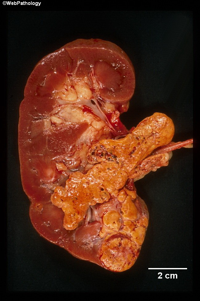 Kidney_RCC_Gross21_RenalVeinInvasion(1).jpg