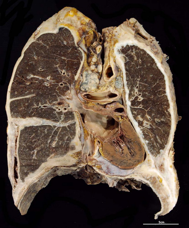 Lung_Mesothelioma_Gross1_Resized.jpg