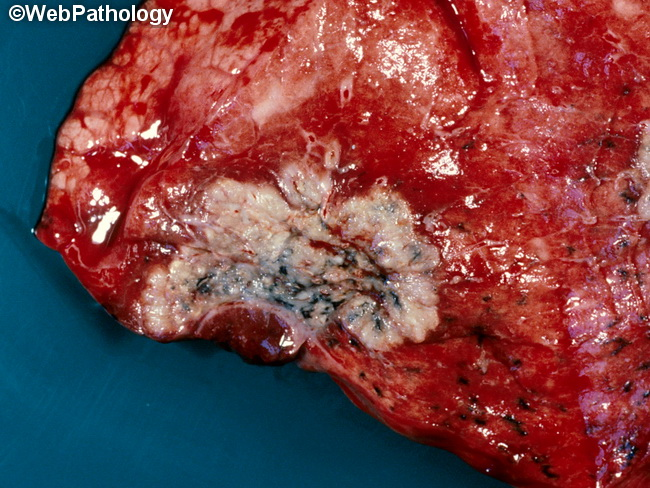 Lung_Neoplastic_SCC_Gross3_cropped.jpg