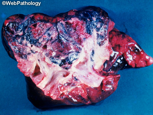 Lung_Neoplastic_SCC_Gross7_cropped.jpg