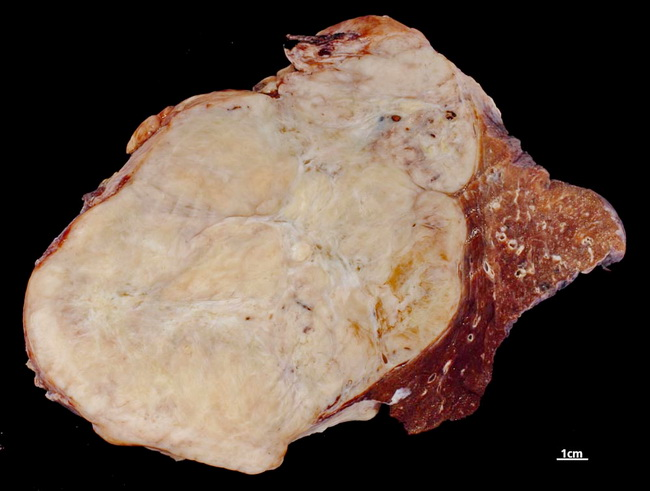 Lung_Neoplastic_SolitaryFibrousTumor_Resized.jpg