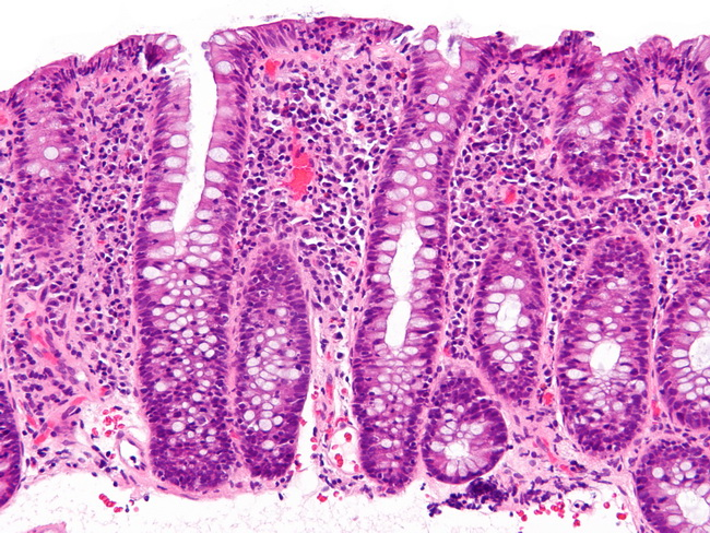 Lymphocytic_colitis_-_high_mag_resized.jpg
