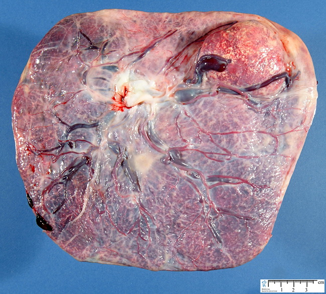 Placenta_Chorangioma1_Reduced.jpg