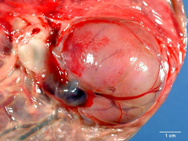 Placenta_Chorangioma4_resized.jpg