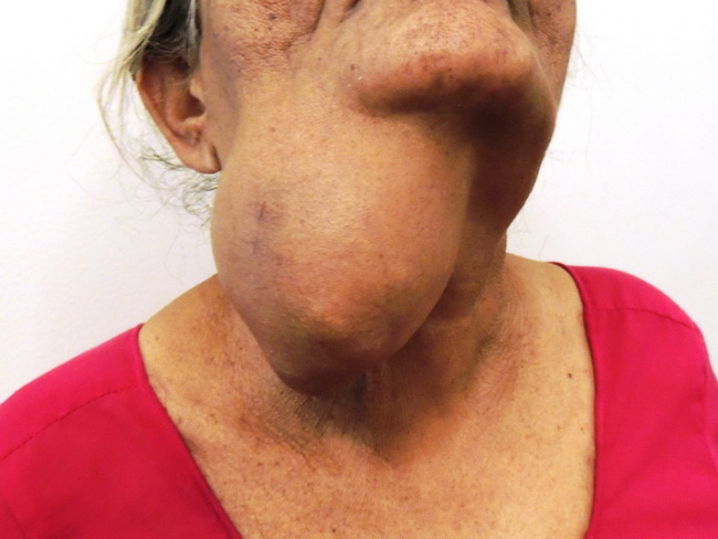 SalivaryGlands_ACC14_Clinical_resized.JPG
