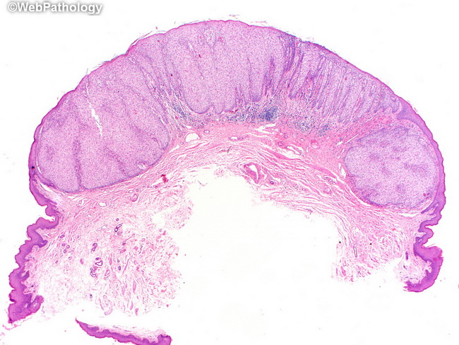 Skin_ClearCellAcanthoma1.jpg