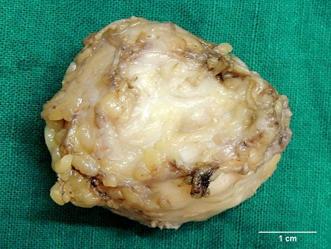 SoftTissue_Fibroma2_Resized(1).jpg