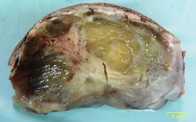 SoftTissue_Liposarcoma2_resized(1).jpg