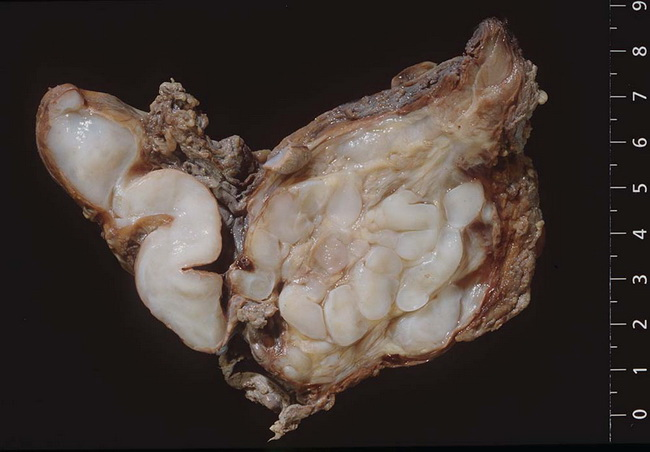 SoftTissue_Neurofibroma_Plexiform_Gross3.jpg