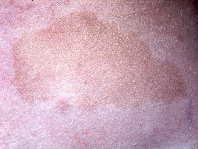 SoftTissue_Neurofibromatosis_Cafe-au-lait1_resized.jpg