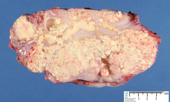 SoftTissue_TumoralCalcinosis_Gross2_resized.jpg