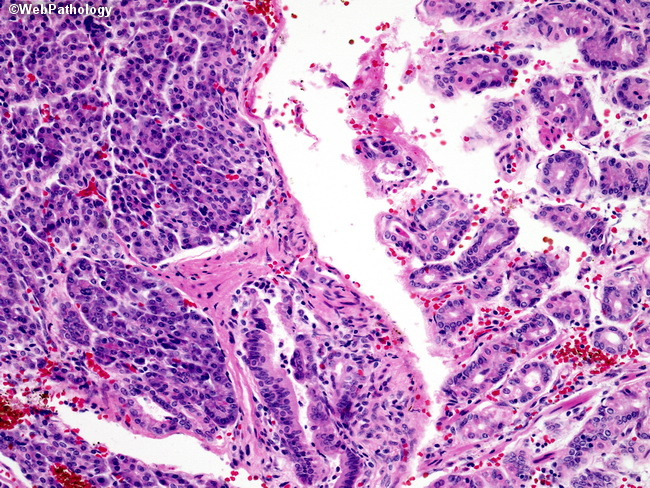 Webpathology.com: A Collection of Surgical Pathology Images