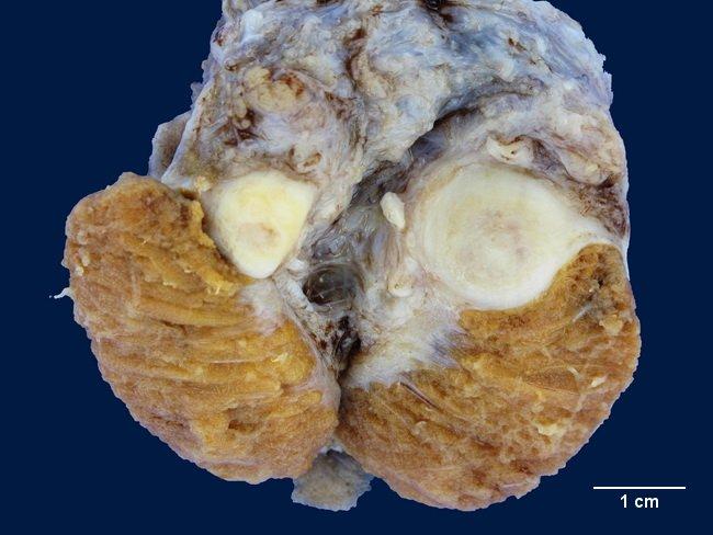 Adenomatoid Odontogenic Tumor Gross Tumor: Adenomatoid Tum...