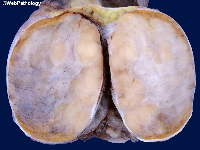 Testis_Germ_Seminoma_Gross10.jpg