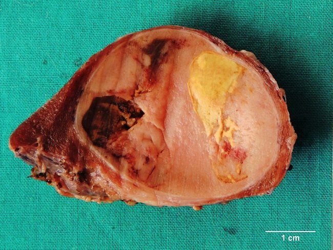 Thyroid_Adenoma3_SecondaryChanges_cropped(1).jpg
