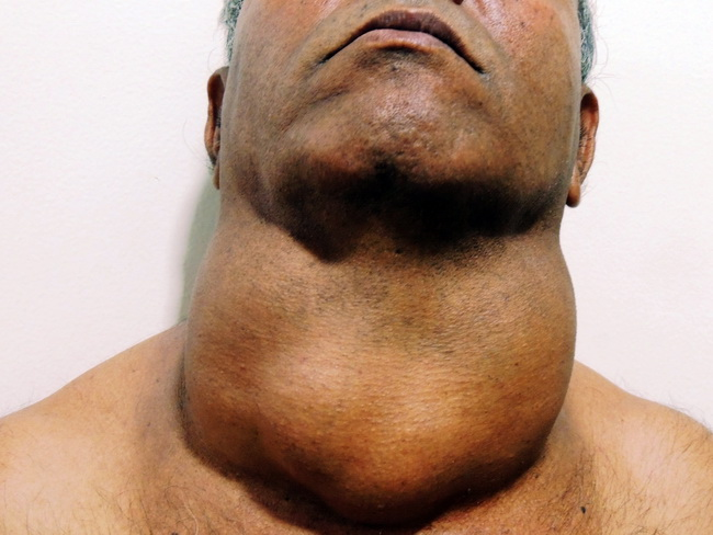 Thyroid_Goiter_Multinodular_Clinical2_cropped.jpg